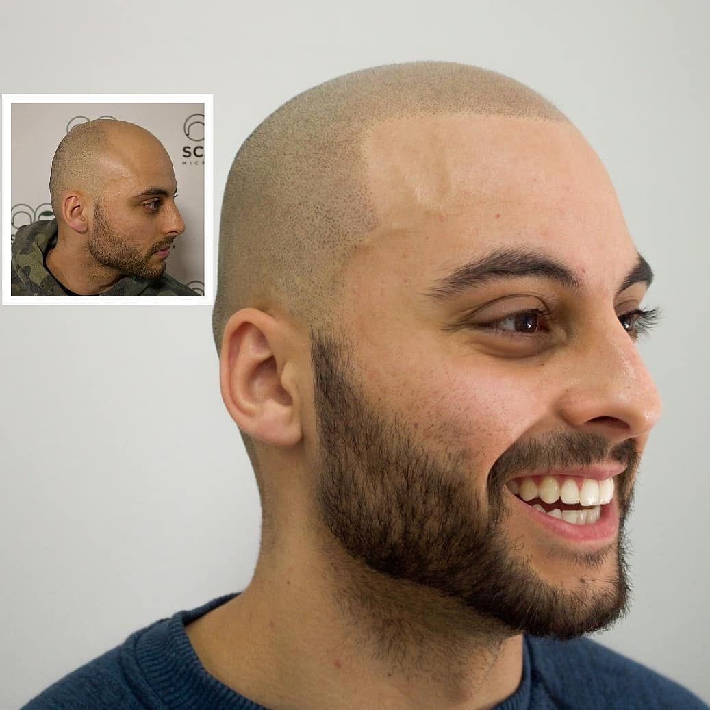 What are the precautions that one should know while taking up Scalp Micro-pigmentation?